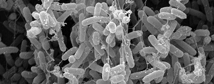 Closeup of bacteria - image from https://www.ndsu.edu